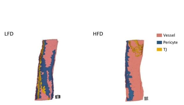 Les péricytes (en bleu sur visuel ci-contre) qui enveloppent l'extérieur des vaisseaux sanguins microscopiques dans le cerveau pour leur donner plus de force et leur permettre de faire avancer le sang, perdent leur adhérence