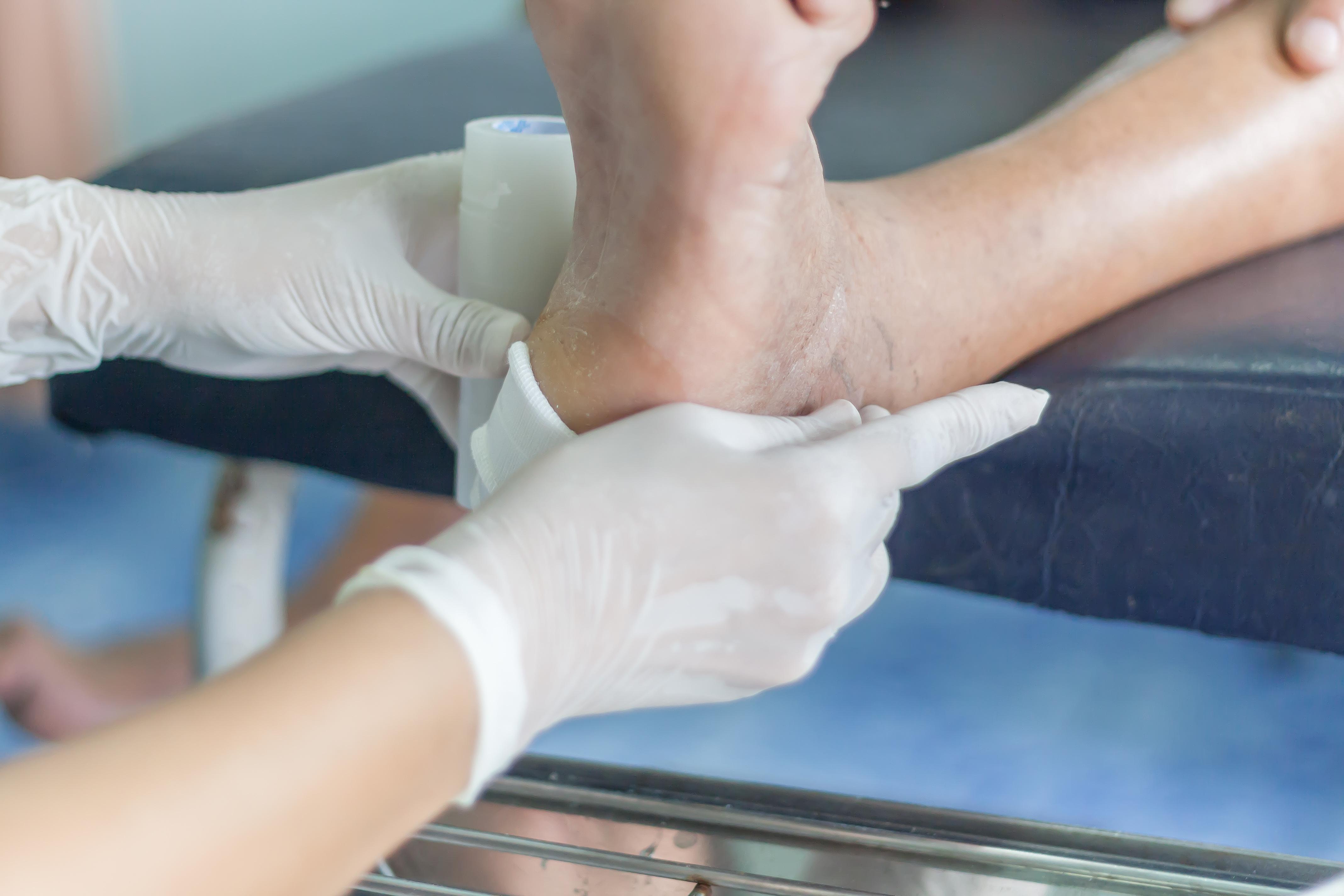 Les complications microvasculaires du diabète de type 2 comprennent les lésions oculaires pouvant entraîner la cécité, la maladie et l'insuffisance rénale, la neuropathie, l'impuissance et l'ulcère du pied diabétique (visuel) pouvant entraîner l'amputation.