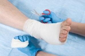 Les communautés microbiennes associées aux plaies chroniques courantes chez les patients diabétiques ont une incidence considérable sur leur cicatrisation ou le risque d'amputation.