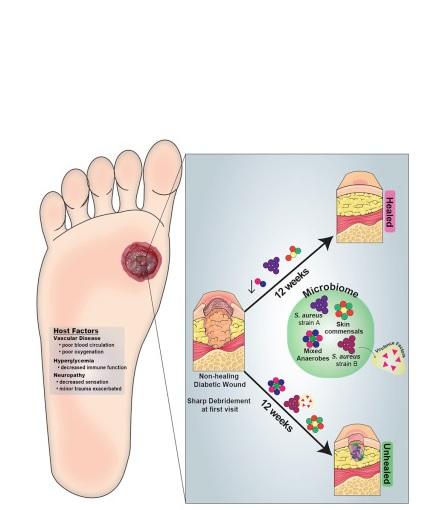 A. Faecalis semble stimuler une inflammation bénéfique de la peau lésée qui limite les effets néfastes de bactéries plus nocives.