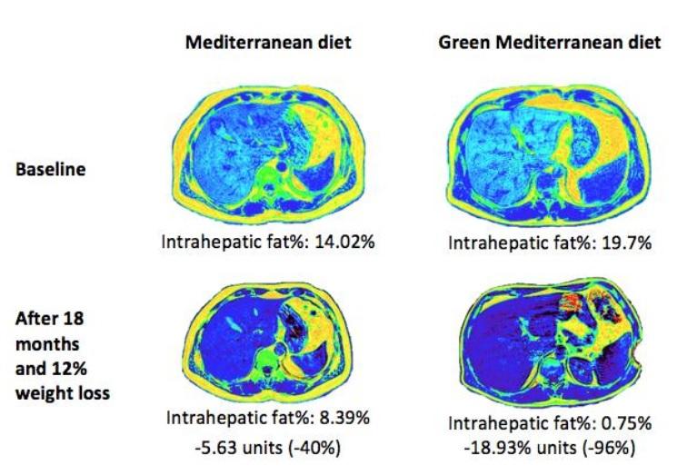 Ces polyphénols, présents dans les noix et le Mankai semblent jouer un rôle majeur dans la réduction de la graisse du foie (Visuel Gut 2021).